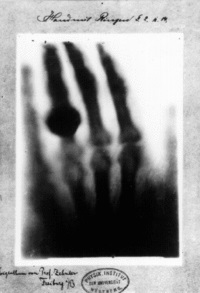 X-ray of Bertha Rontgen's hand