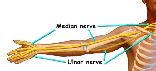 The Median Nerve starts in the neck and can potentially be compromised anywhere along its pathway.