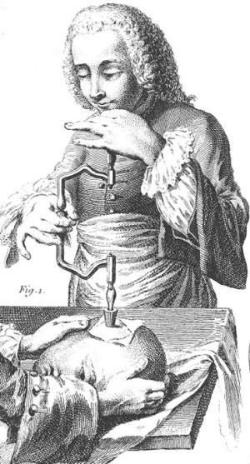 craniotomy.jpg
