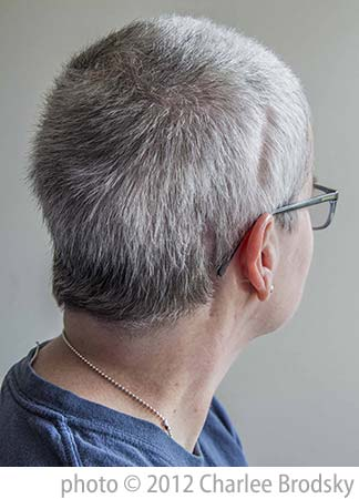 Deb Brandon, back of head showing scars from brain surgery. Photo by Charlee Brodsky