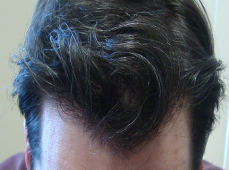After (14 months)