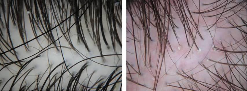 normal vs scalp erythema.jpg