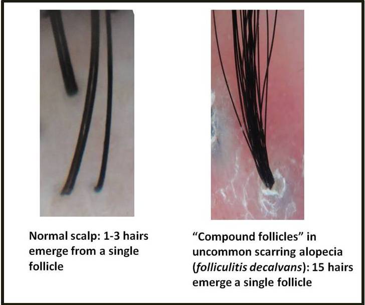 Growing out follicle one hairs multiple of multiple hairs