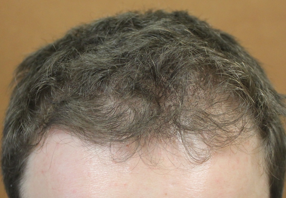 Accumulating evidence suggests minoxidil helps with hair loss in the crown (top) but may help hair loss in the front and temples in men as well.