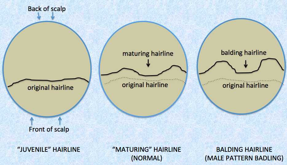 「Phenotype of normal hairline maturation」の画像検索結果