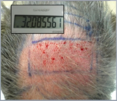 The density of follicular units can be calculated by dividing the number of grafts placed in an area by the area. This patient with extensive thinning was transplanted at a density of 32 follicular units per square cm (32 FU/cm2).