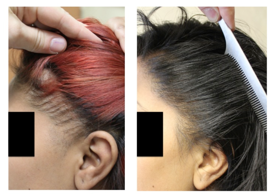 Restoration of the frontal hairline in a woman with traction alopecia. Photo: 12 months post op.