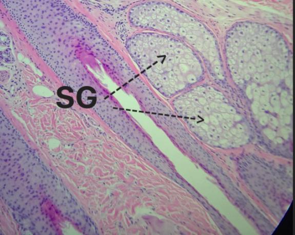Sebaceous Glands (SG).png