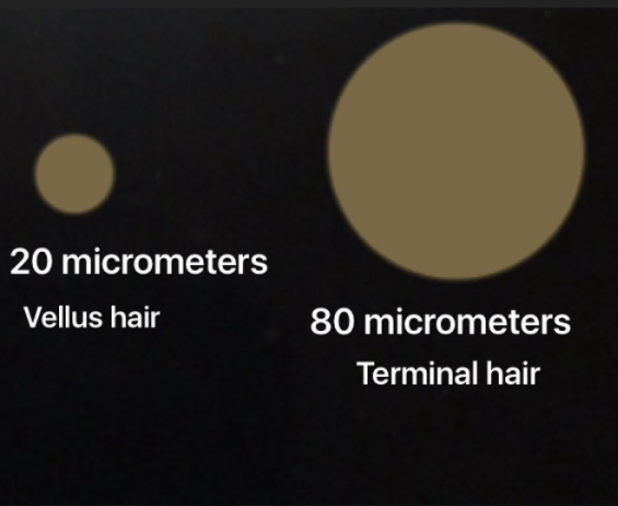 Vellus Hairs on the Scalp.png