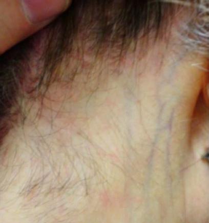 PHOTO 4: Frontal fibrosing alopecia (FFA) presenting as hair loss in the nape