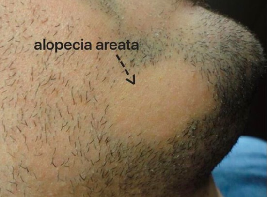 AA Beard photo.jpg