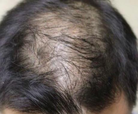 male balding.jpg