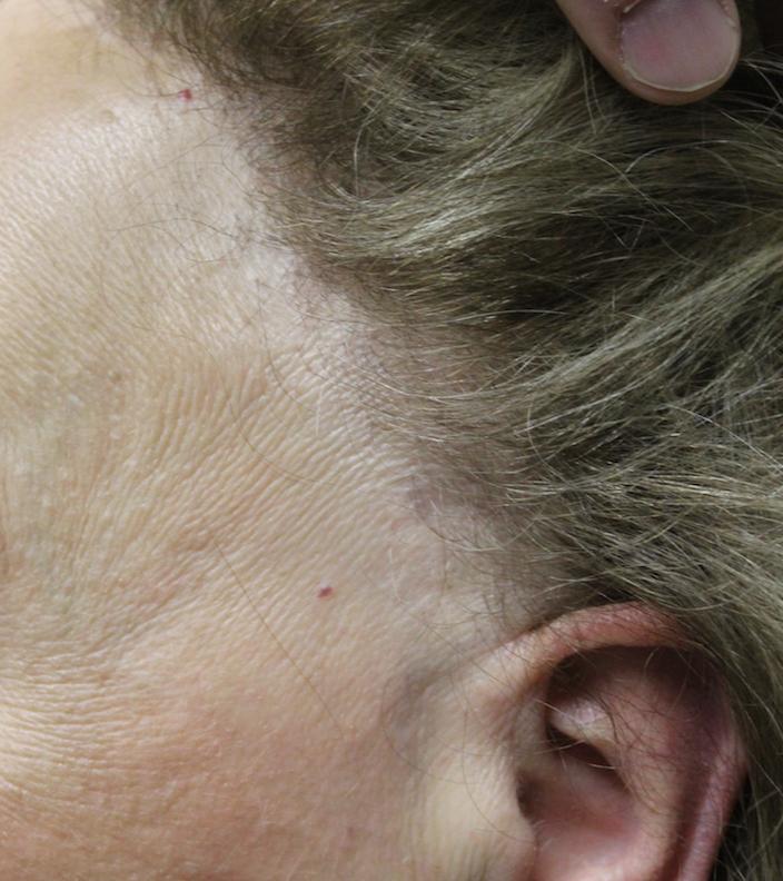 Dr Donovan S Hair Loss Articles 2011 2021 Donovan Hair Clinic