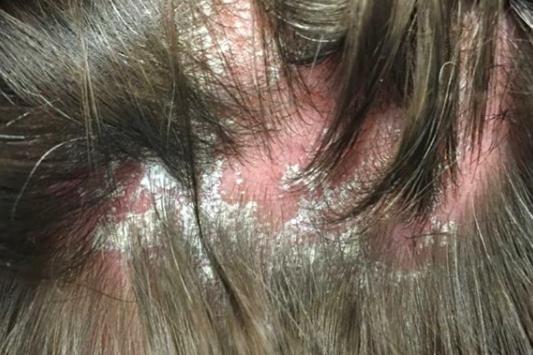 scalp psoriasis.png