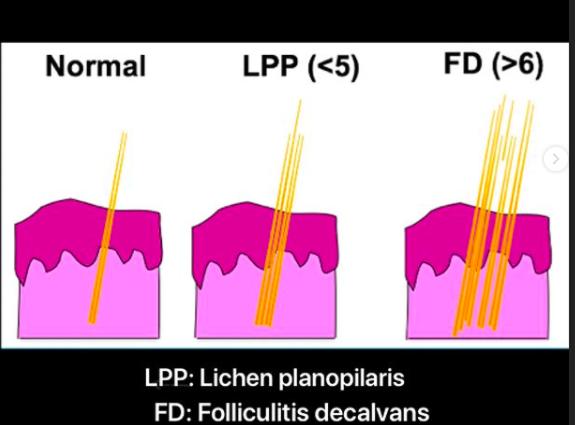 lpp-vs-fd.png
