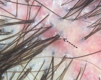 compound follicles 6 hairs.png