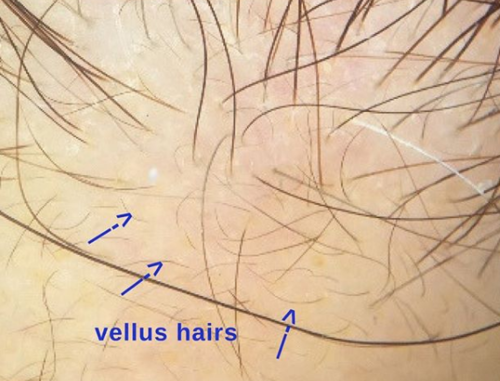 """Do I Have Frontal Fibrosing Alopecia? : Vellus hairs in hairline may mean """"no"""" — Donovan Hair Clinic"""