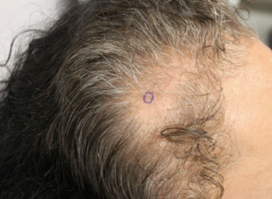 Traction alopecia of the frontal hairline.