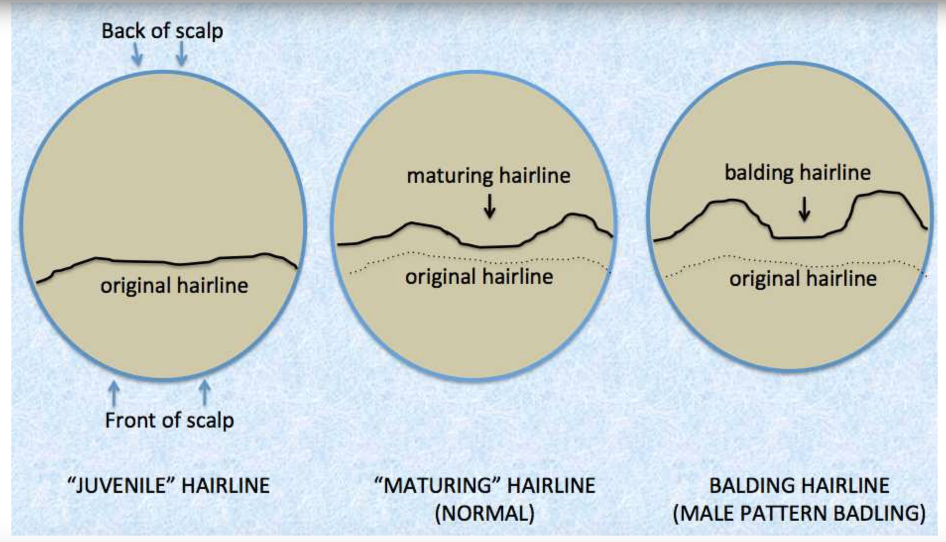 Diagram of Hairline Changes in Males