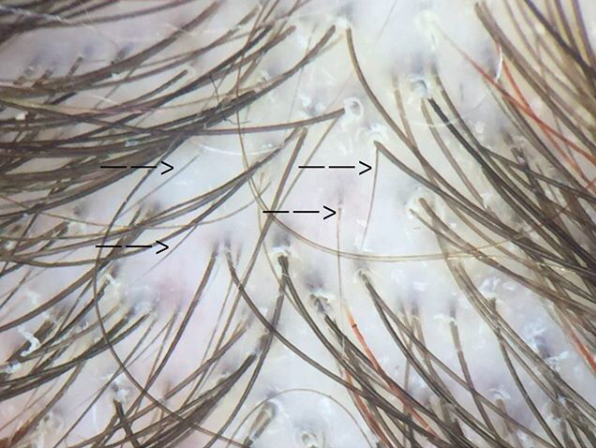 Numerous upright regrowing hairs in a patient with telogen effluvium.