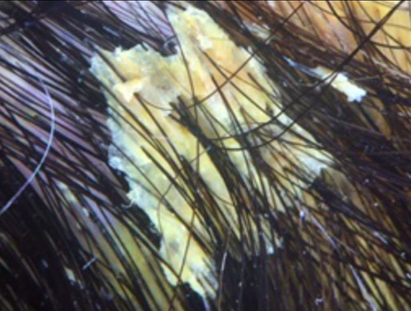 pityriasis-amiantacea