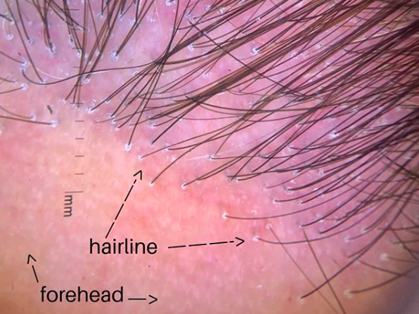 """Typical trichoscopic image of a patient with the scarring alopecia known as frontal fibrosing alopecia or """"FFA."""" There are most single hairs in the frontal hair line and the vellus hairs are not seen. There is scale around some hairs and also redness."""