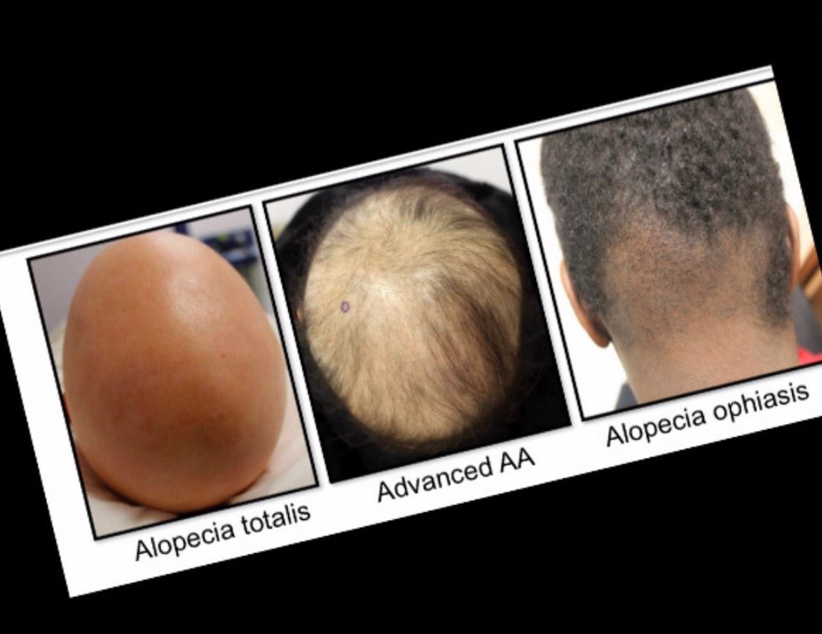 There are many variants of alopecia areata including patchy alopecia areata, alopecia totals, alopecia universalis and ophiasis.
