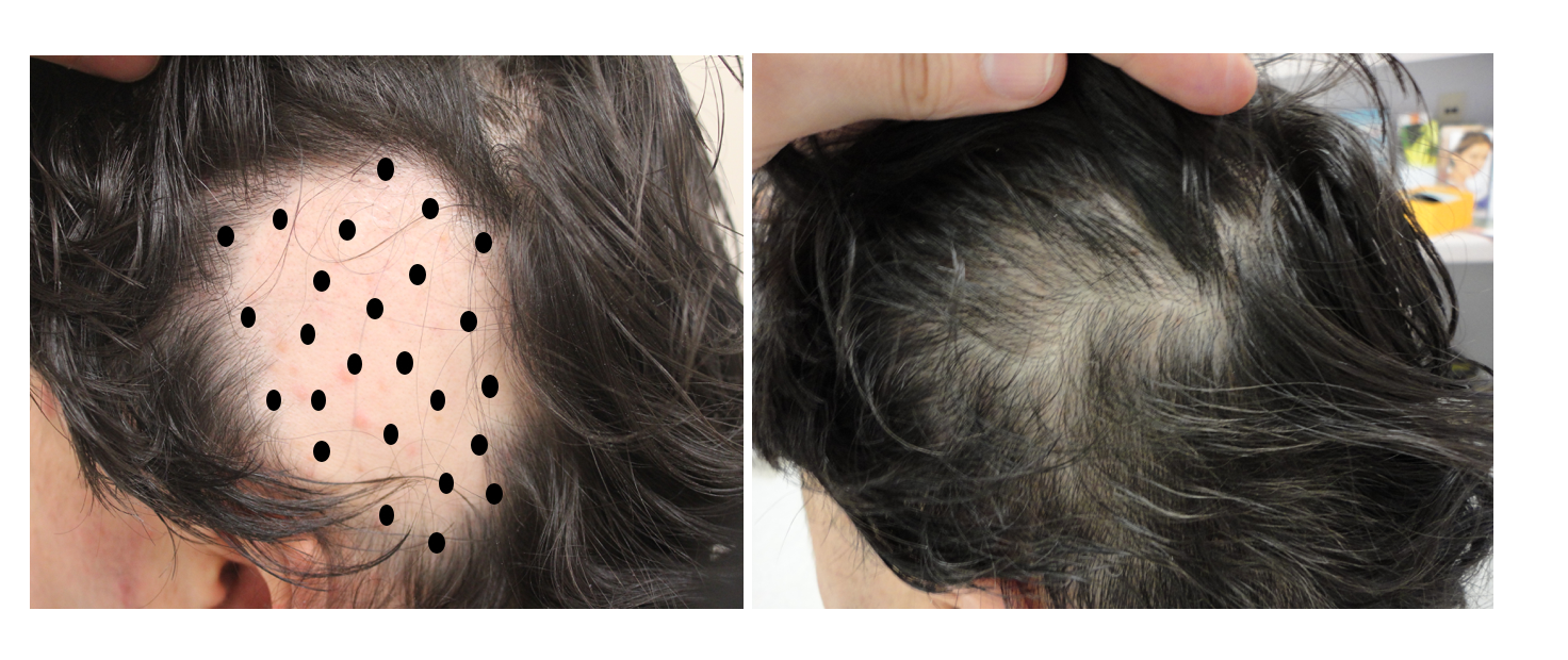 cost of steroid injections for hair loss