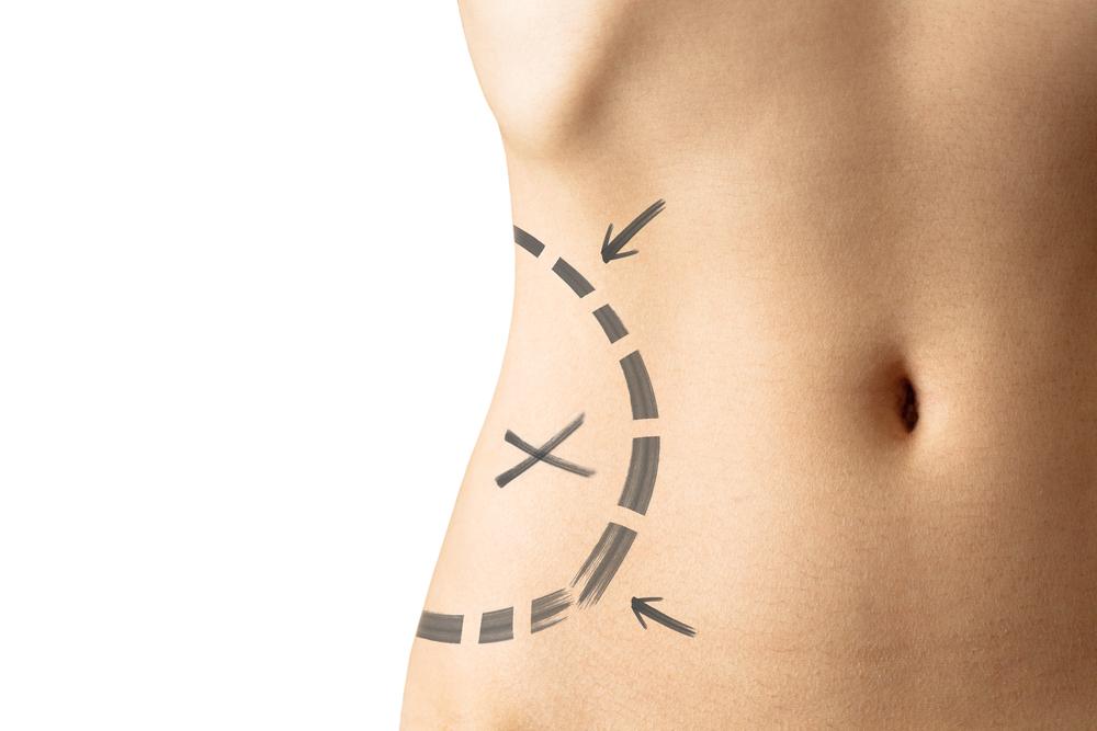 Abdominoplastia – Cirugía de Abdomen