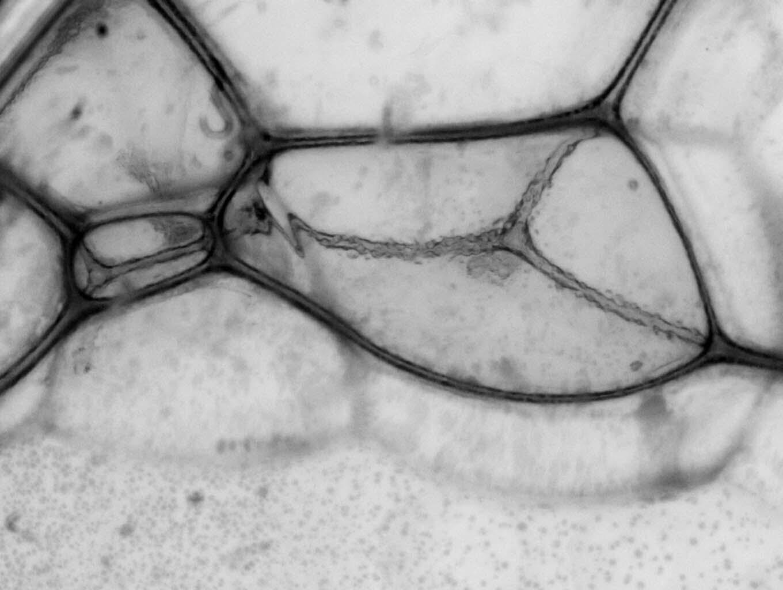 becteria1.jpg