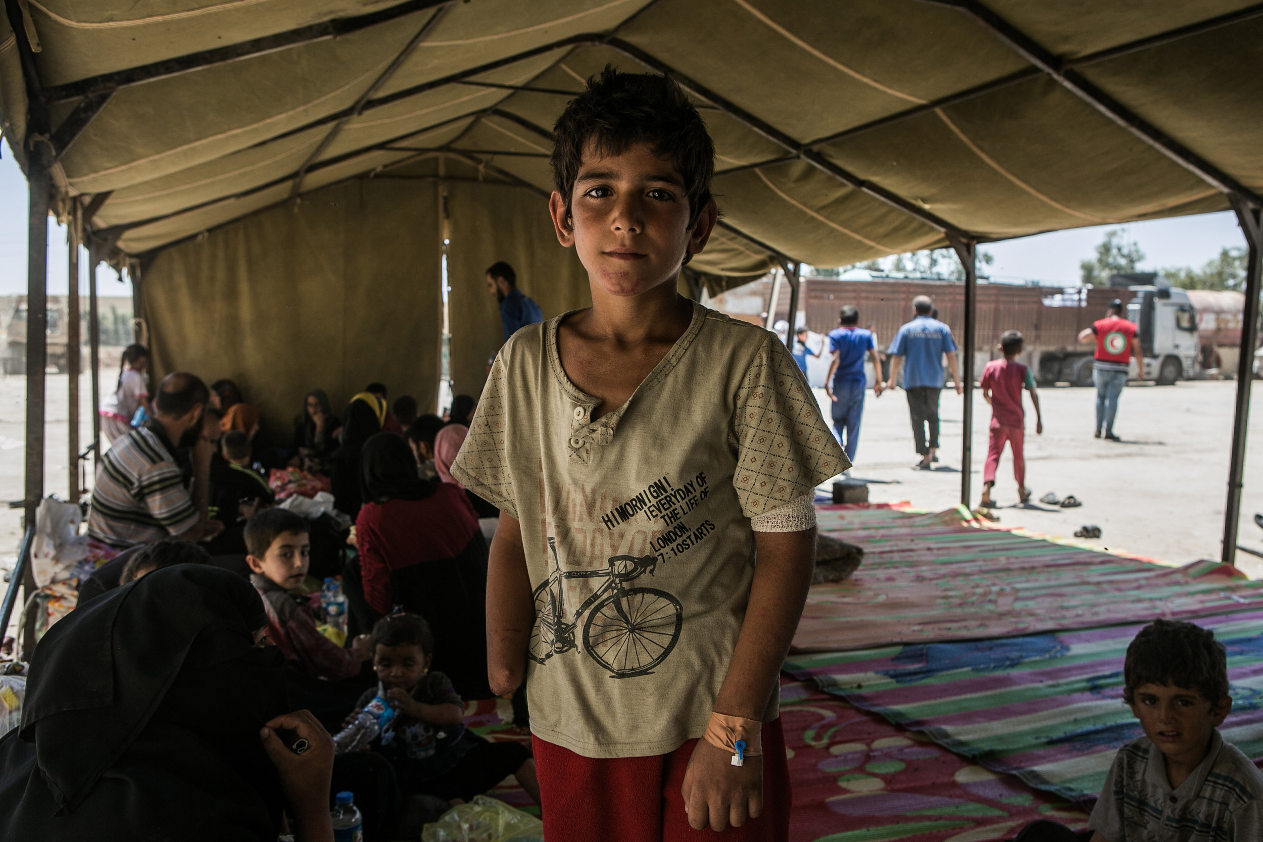 A young boy who lost his hand due to fighting in Mosul waits with his family to be relocated to one of the displaced people's camps south of Mosul. His mother says his hand was injured by a mortar falling in western Mosul and that Islamic State doctors treated him.