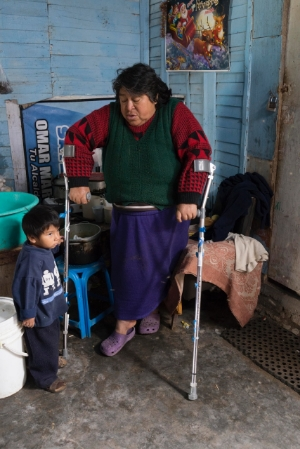 Eufemia's story is one I will carry with me forever. This 58-year-old woman lives in a small room with her young son. She was involved in a car accident and could barely walk because of a poorly healed hip injury.She cried tears of joy when we presented her with forearm crutches, because she will now be able to leave her one-room home.