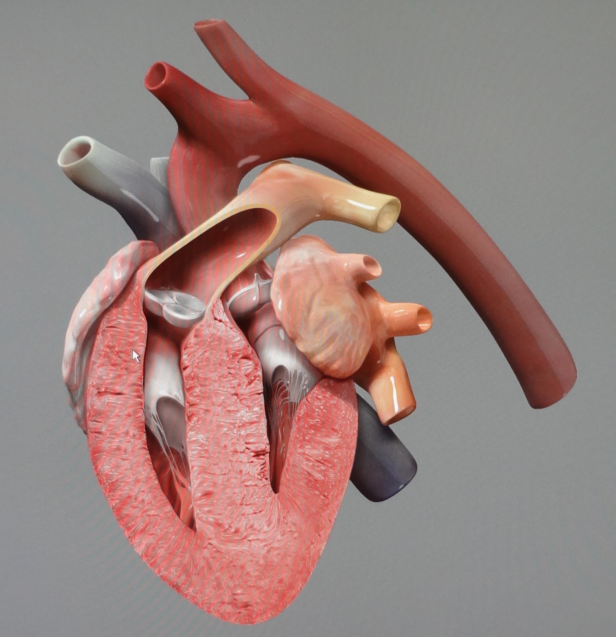 TVRH triangle veterinary referral hospital trianglevrh Hypertrophic cardiomyopathy.JPG