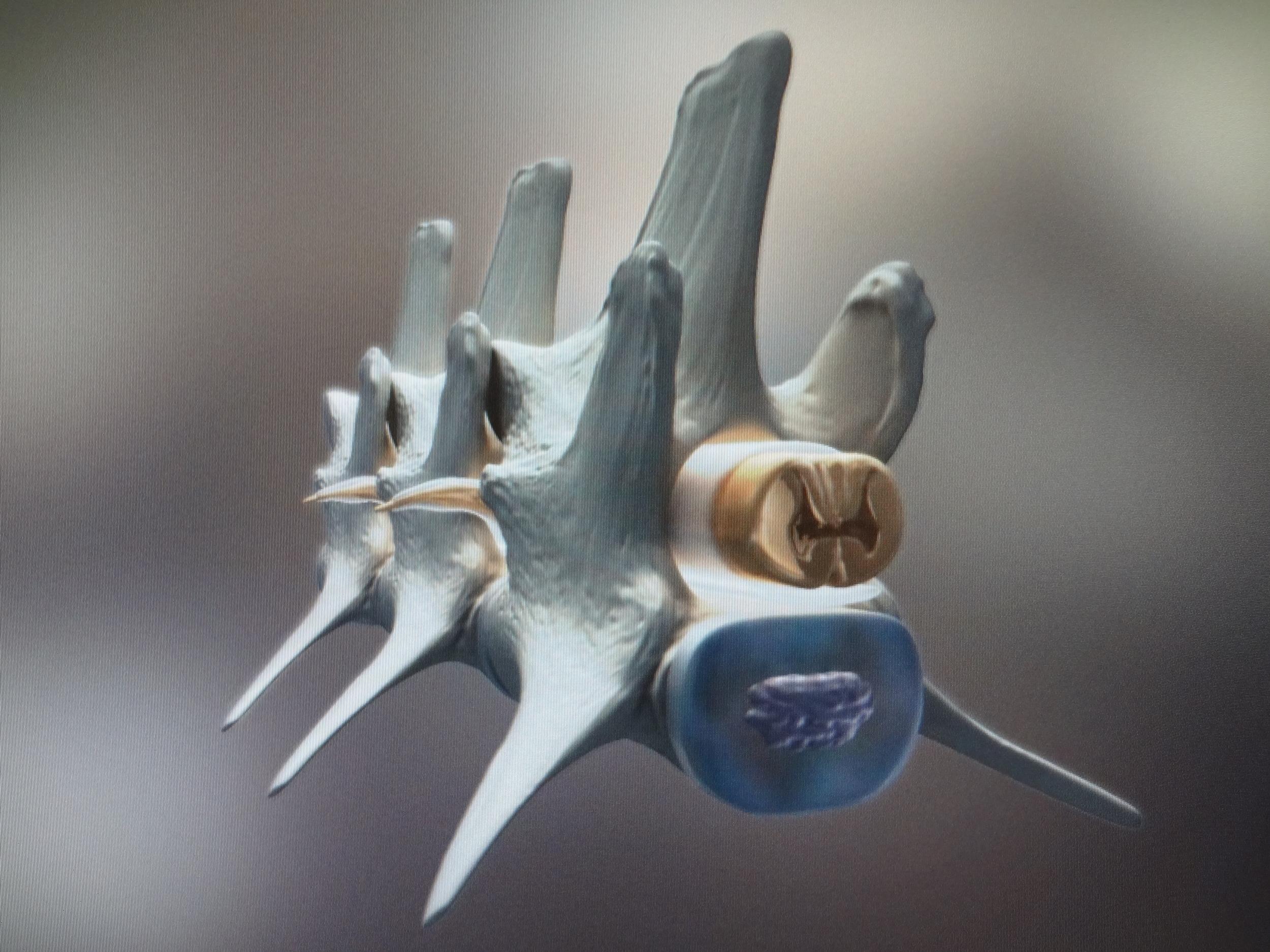 DIA: Intervertebral disc