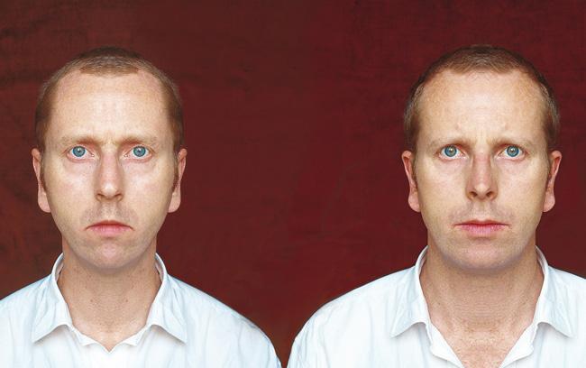 Édouard Levé, self-portrait created through mirror images of his asymmetrical face.
