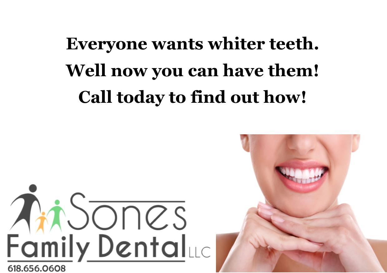 White Teeth 2.png