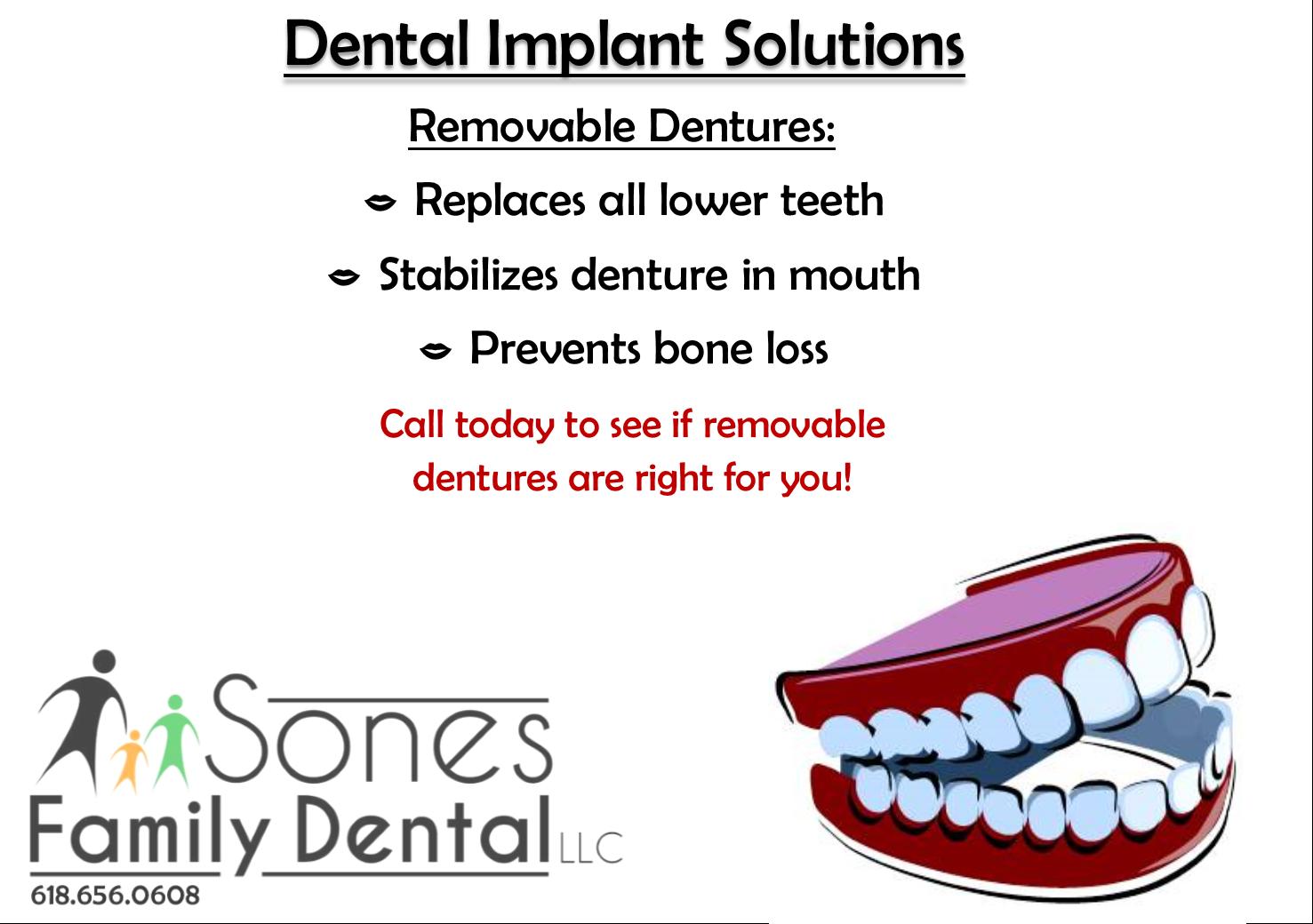dental implants sol 3.png