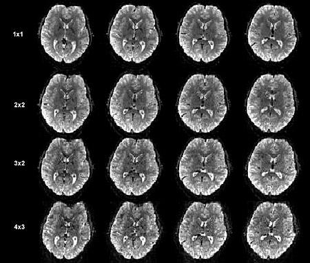 brainscanx4.jpg