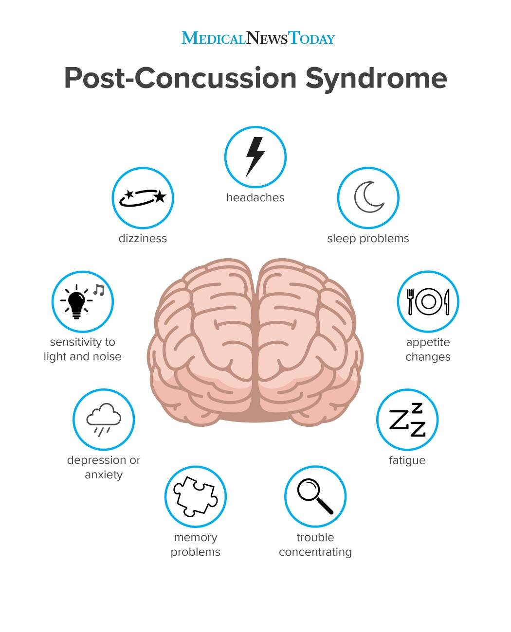 an-infographic-of-post-concussion-syndrome.jpg