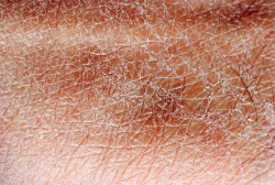 Dry skin: skin lacking oils or natural hydrators