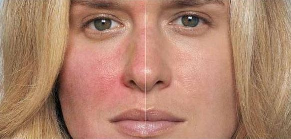 Redness and irritation in the cheeks is a common symptom of rosacea. On the left you see a rosacea flare up. On the right you see calm, regulated skin.