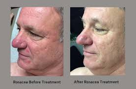 Here is an example of a before and after treatment.