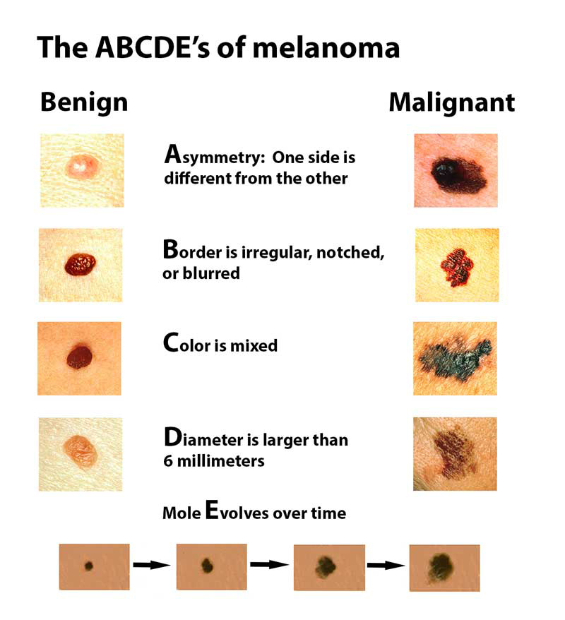 The ABCDE's of melanoma help to identify moles and dark spots on skin that could possibly be cancerous. Always get checked by your dermatologist if you see a suspicious mole.