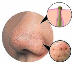 Blackheads are easily removed after steam and exfoliation.