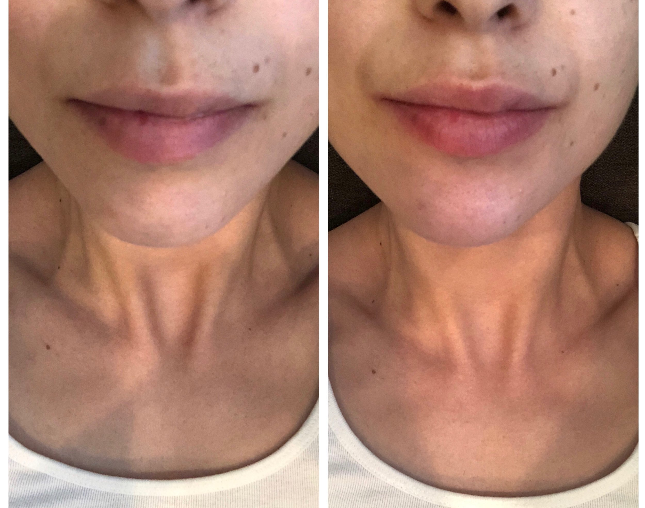 On the left is before treatment and on the right is after brushing lips with solution for 1.5 minutes.