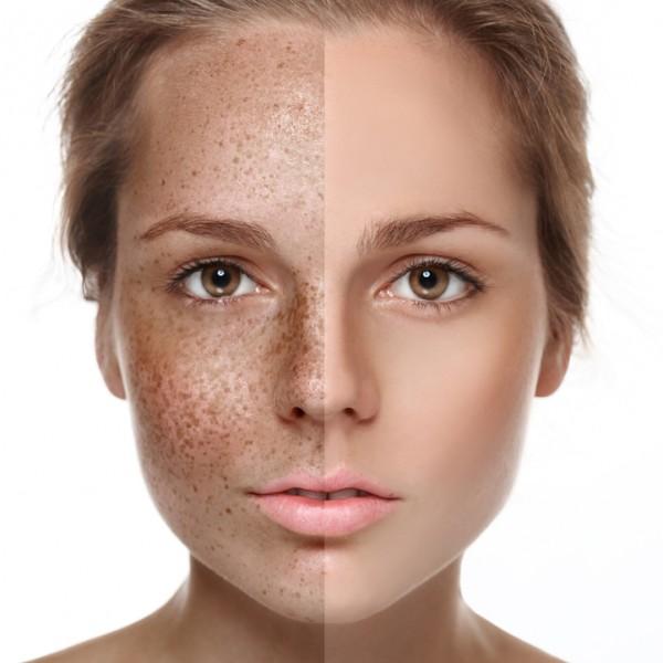 UVA rays cause long term damage like dark spotting.