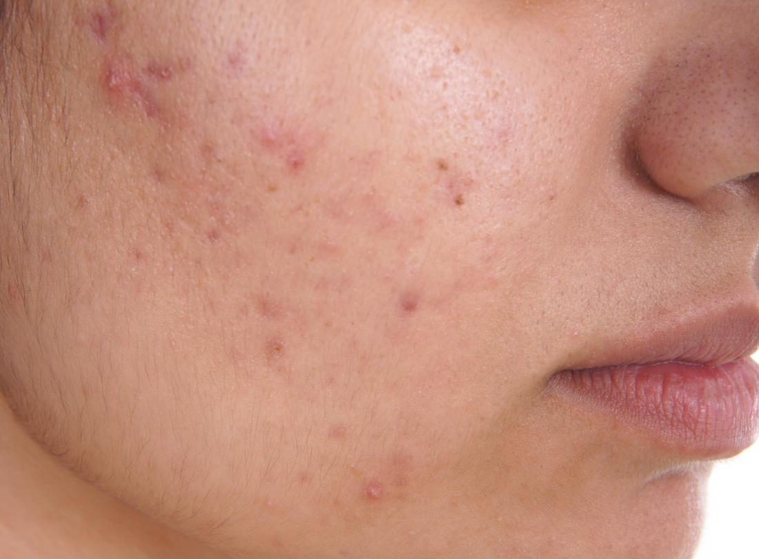 Acne/Pimples - Acne and whiteheads along the cheekbones and near the area can be an indicator that your body is reacting to something in your diet. If breakouts are mainly in your cheek area and are not easily remedied it's best to start a food log to try and pinpoint what types of foods trigger a pimple. You can also check in with a nutritionist to better understand how your body processes foods. These types of breakouts can also be caused by a drastic change in diet.There are some common foods that cause breakouts. This list does not apply to all, it's just a small list of foods that we know to cause cheek pimples. Nuts, avocados, refined sugar, dairy, and foods with gluten (for those with gluten allergies).