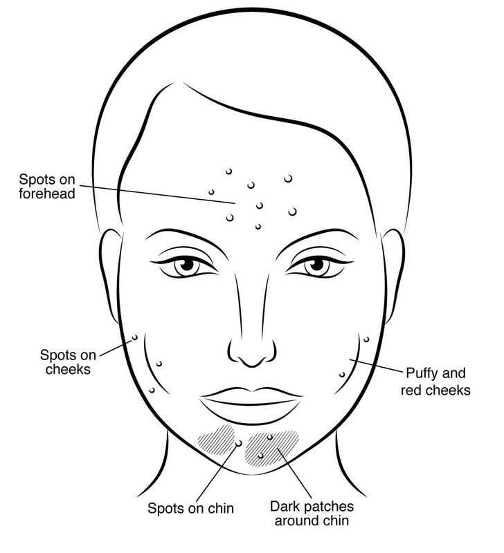 """My favorite part: her four illustrations on Ayurvedic facial mapping and the outer manifestations of diet on our faces. Picture above is """"gluten face."""" So drawn into my psyche are these telltale signs, I can identify a person's indulgences almost at a glance. They've become incorporated into my own makeup aesthetic, where I literally erase the signs of aging and paint on health and happiness."""