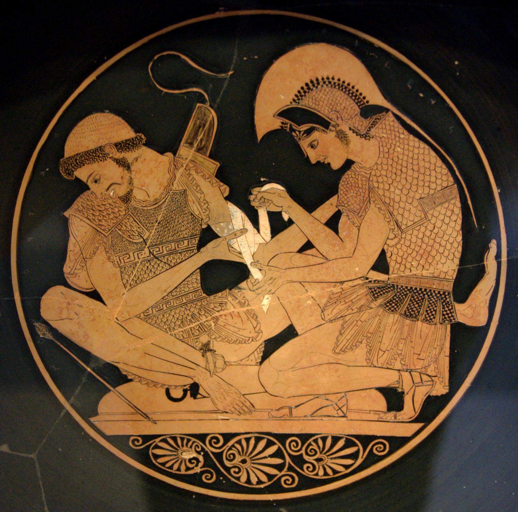 """Achilles Tending the Wounded Patroclus,"" an Attic red-figure kylix circa 500 B.C. Altes Museum."