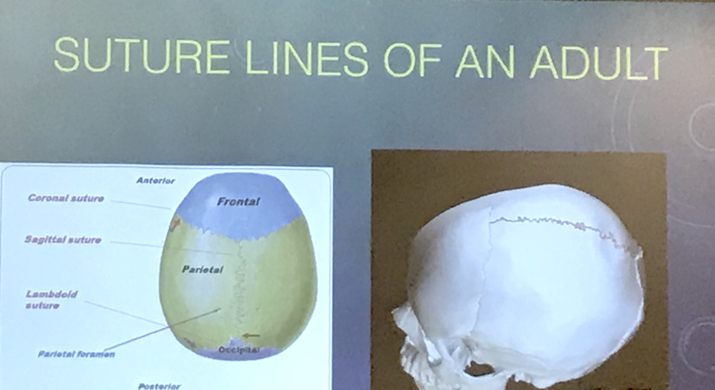 "Another presentation slide, showing ""normal"" human skull suture lines. The sagittal suture was not found in the Paracas skulls."